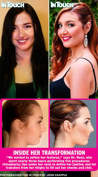 Unretouched rhinoplasty images
