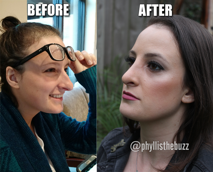 phyllis-rod-ryan-show-nose-job-before-after-photo-houston.png