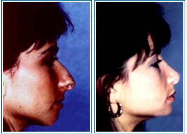 houston-nose-job-