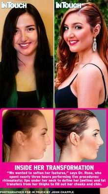 ashley-lohan-rhinopasty-by-dr-rose-houston-texas.jpg